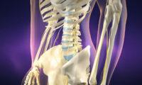 医疗骨折专用器械 2